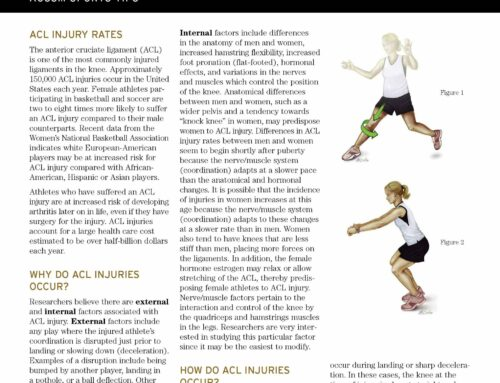 ACL Injury PreventionAC